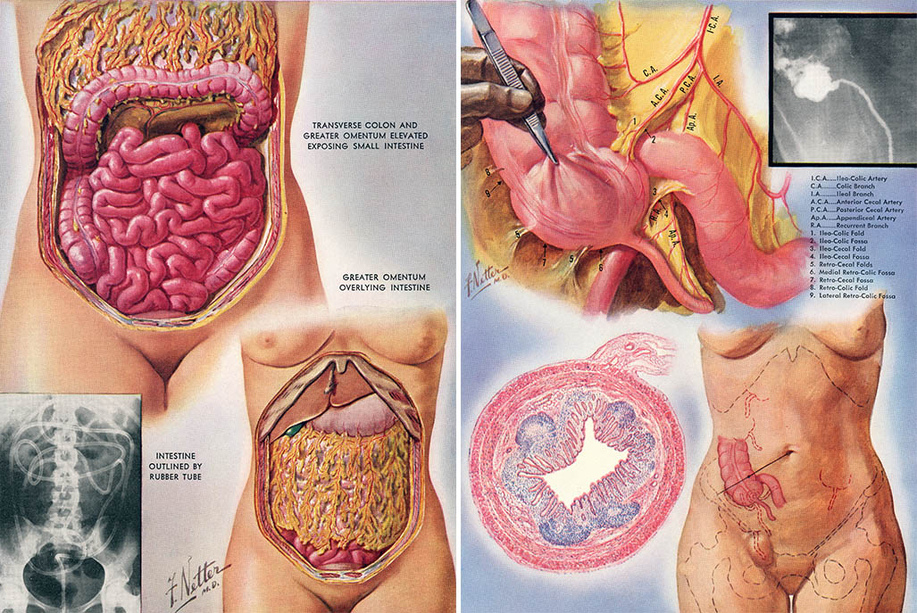 special diet after gallbladder removal